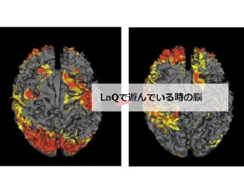ラキューで遊んでいるときの脳の活性化画像